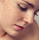 What Is Melasma? What Are The Important Facts on Melasma?