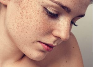 Facts on Melasma