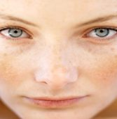 How to Get Rid Of Facial Skin Discoloration? Some Steps to Follow