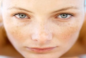 Get Rid of Facial Skin Discoloration