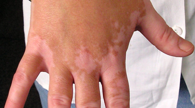Skin Discoloration of Hand – What Will You Do?